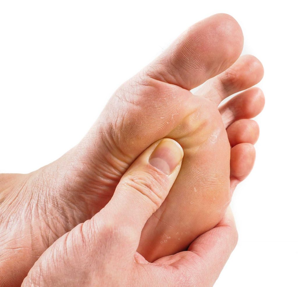 Foot Care for Corns Sterling VA Podiatrist