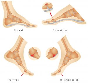 Foot Injury Chart Turf Toe and More Sterling Footcare Shuman Podiatry and Sports Medicine.jpg