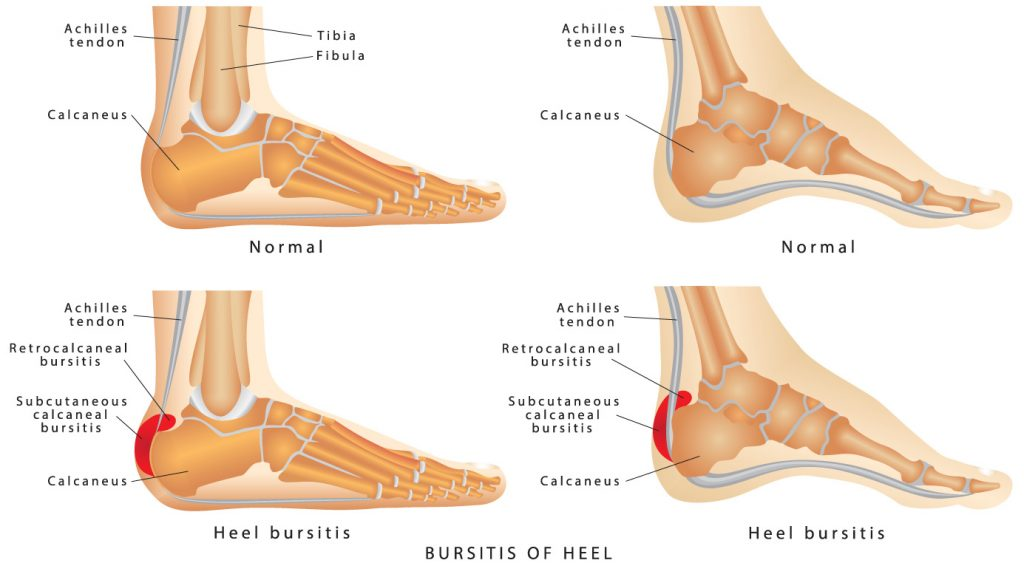 Bursitis of Heel Diagram from Shuman Podiatry in Sterling VA.jpg