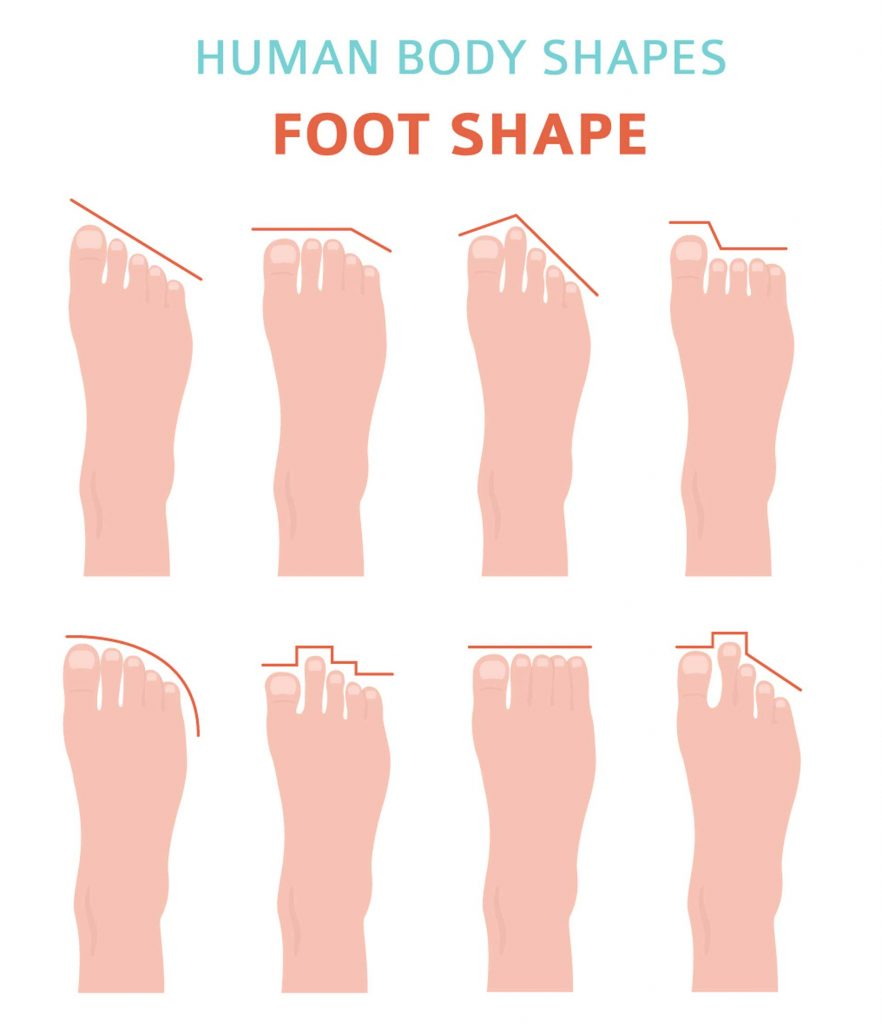Diagram of Foot Shapes Shuman Podiatry and Sports Medicine