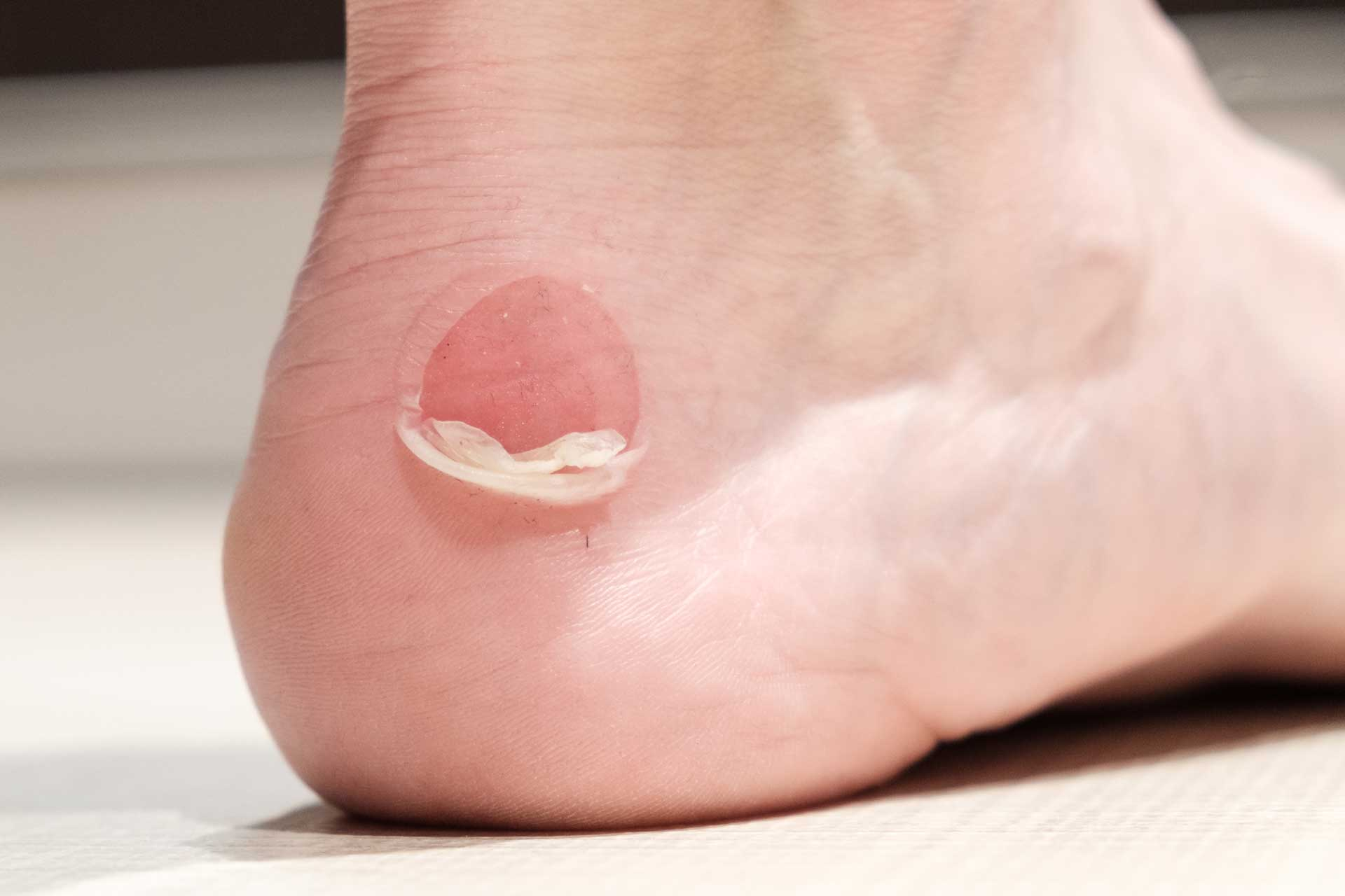 image of blister care for feet and ankles