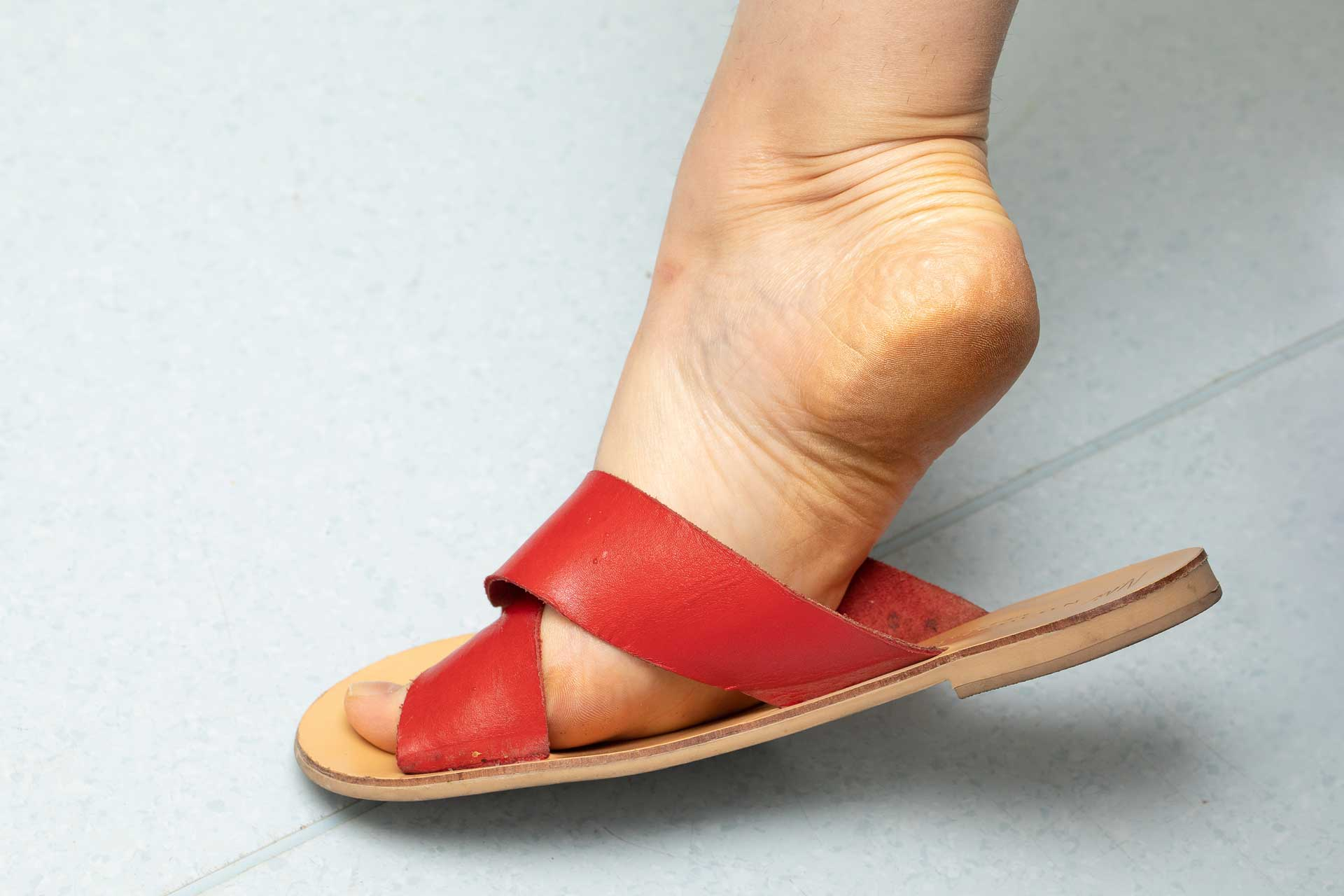 Image of rough skin on heel with red sandals