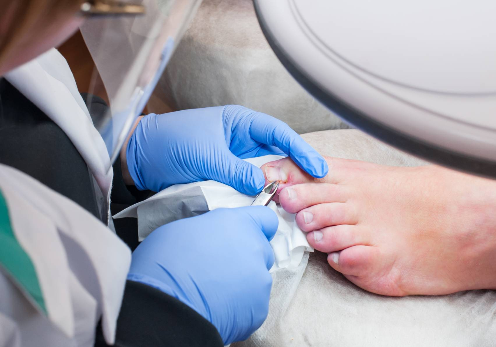 Image of Toenail Care offered by Shuman Podiatry